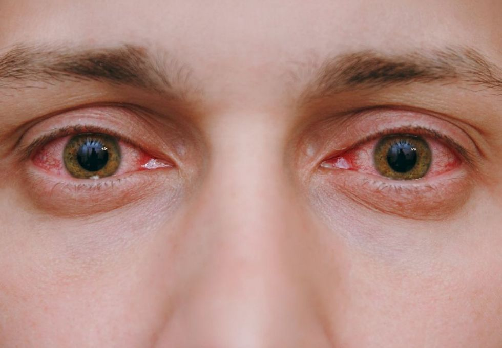 Conjunctivitis (bacterial, viral and allergic)